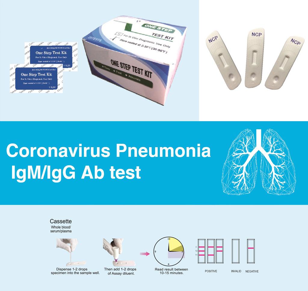 test na koronawirus